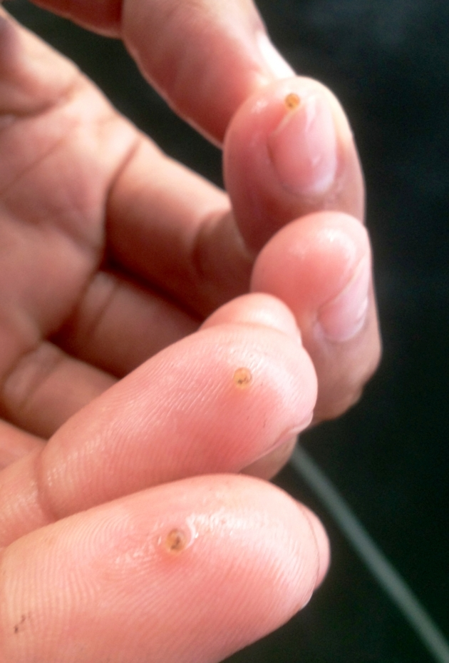 Koi eggs on fingers showing how small the koi eggs are in comparison to the huge mother koi